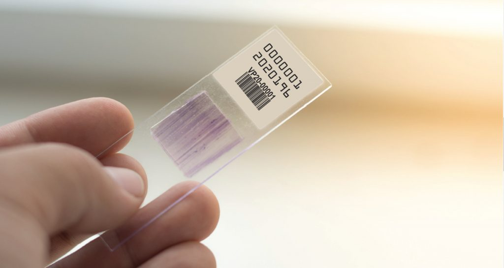 Healthcare Lab Barcode Label